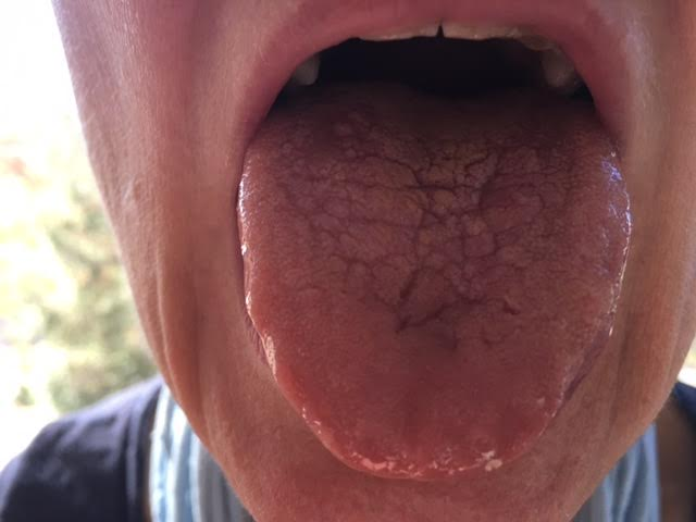 Candida on the Tongue